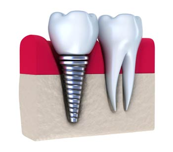 implants1a